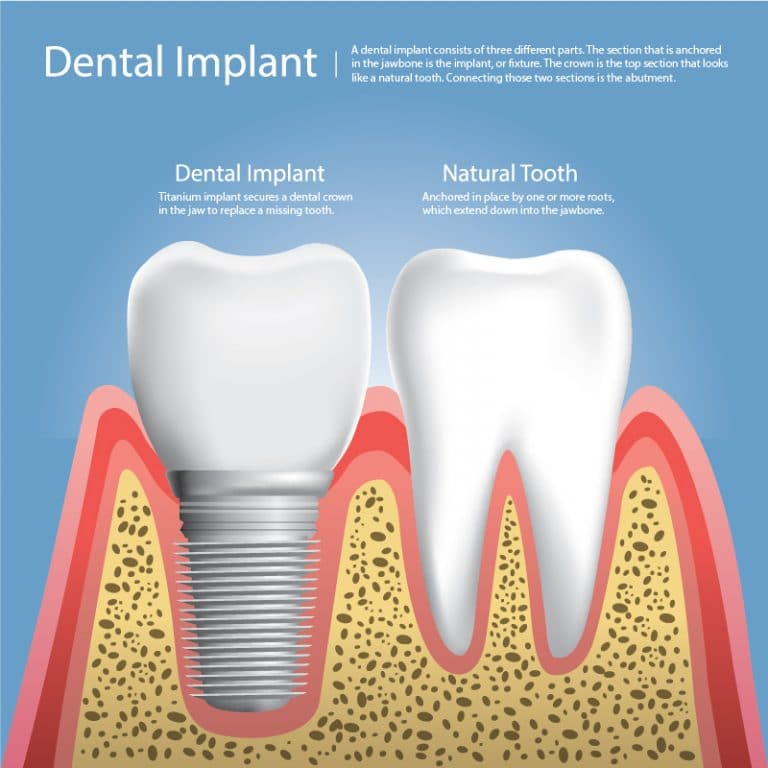 picture of a dental implant and a natural tooth