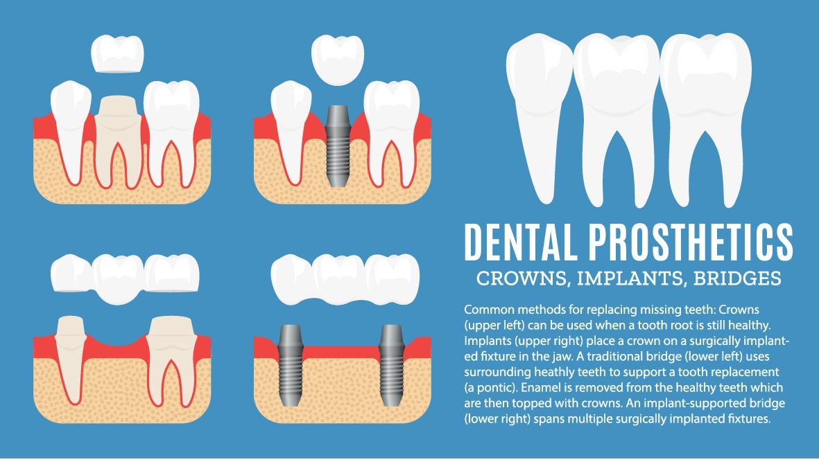 crowns, implants, and bridges