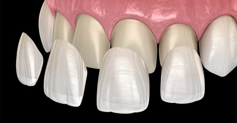 dental veneer installation