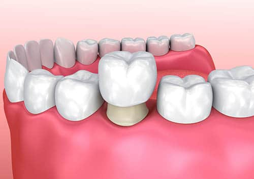 educational image of a dental crown