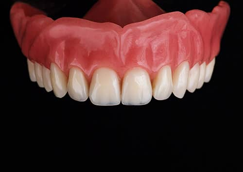 Image of natural looking dentures